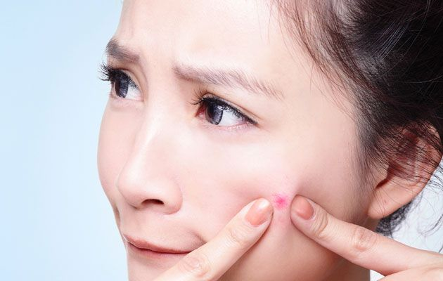 what causes acne and pimples in teenagers pic